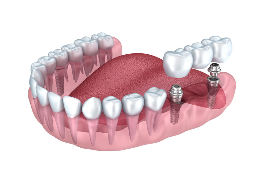 3d lower teeth and dental implant transparent render isolated on