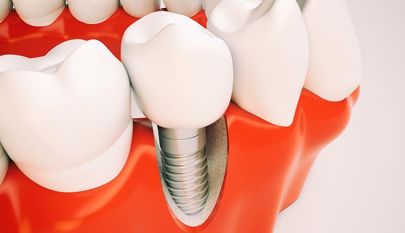 Un 20% de los pacientes presentan periimplantitis a los 5-10 años de la colocación de un implante