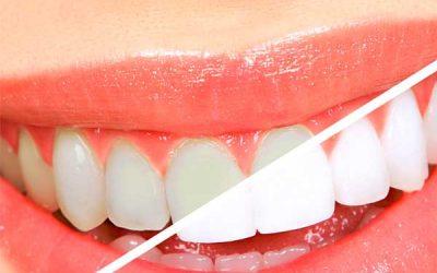 Falsos mitos sobre odontología: El blanqueamiento dental debilita los dientes: